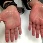 Pediatric sweaty palms palmar hyperhidrosis