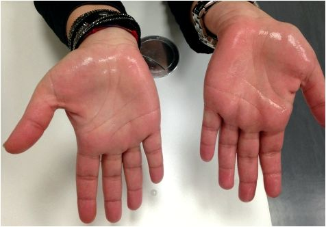 Pediatric sweaty palms palmar hyperhidrosis Palmar hyperhidrosis tests