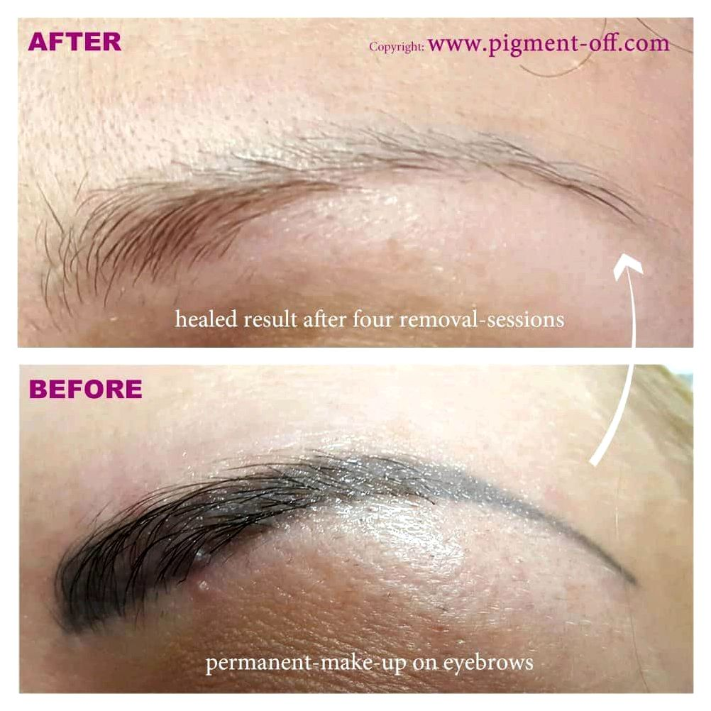 Permanent makeup microblading eyebrows laser tattoo removal correct and scar