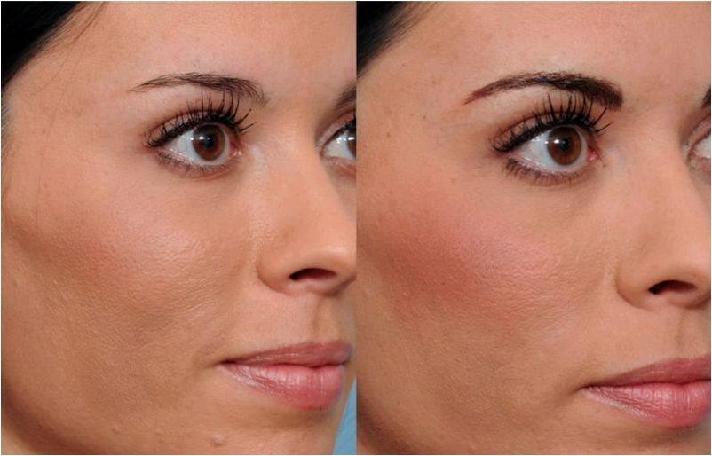 Permanent makeup philadelphia ardmore pa for those who have