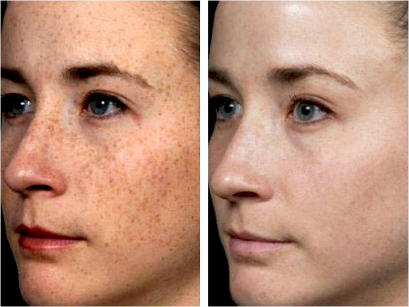 Photofacial hyperpigmentation it decide to