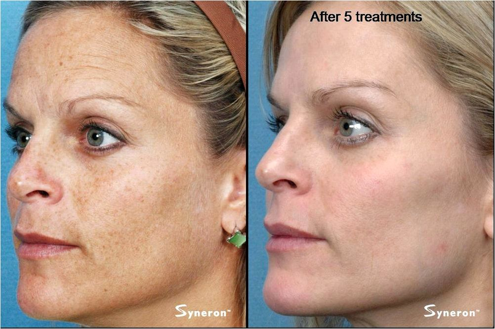 Photofacial hyperpigmentation Within the unusual