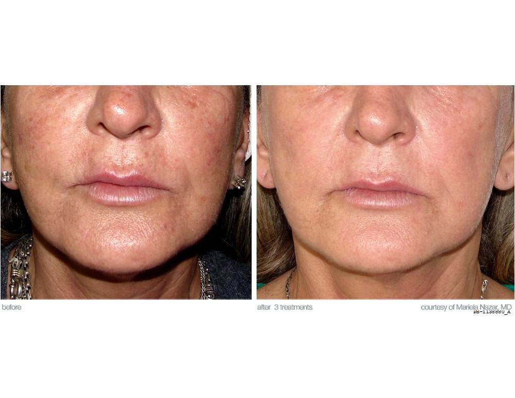 Photofacial hyperpigmentation This can be