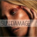 Pigmentation and sundamage — nude