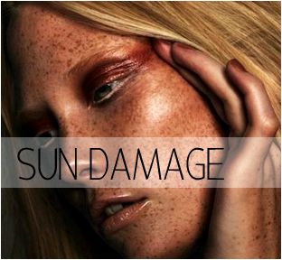 Pigmentation and sundamage — nude and Laser