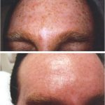 Pigmentation & sundamage — advanced laser therapy clinics