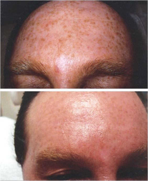 Pigmentation & sundamage — advanced laser therapy clinics treatments does it