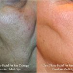 Pigmentation / sundamage — freedom medihealth spa
