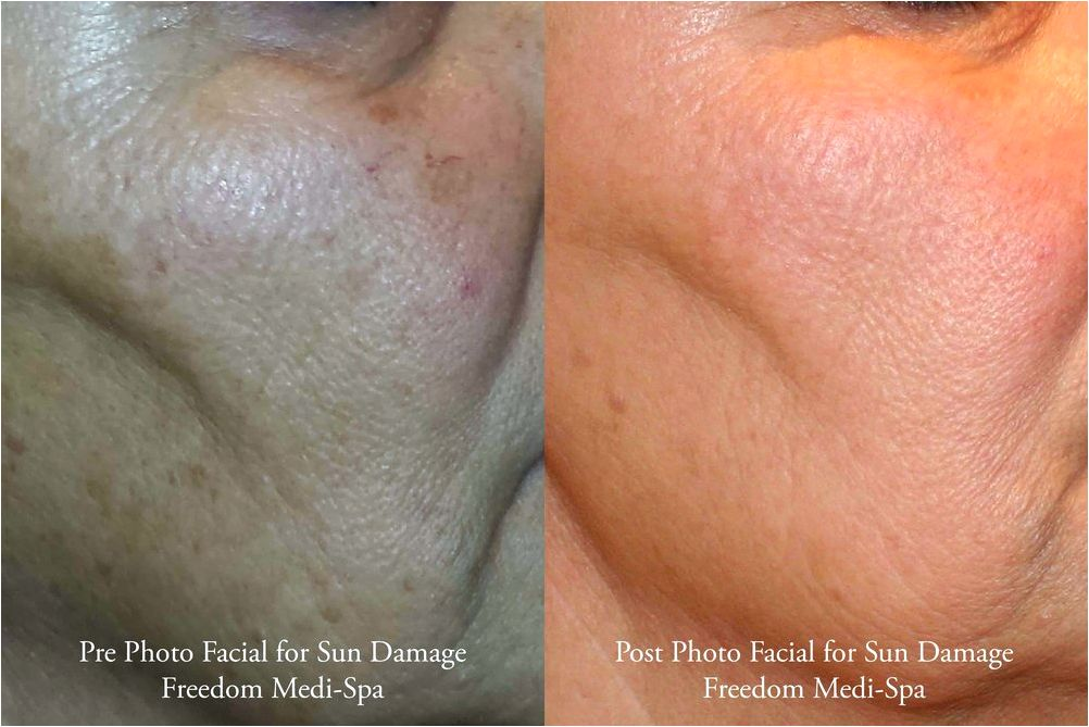 Pigmentation / sundamage — freedom medihealth spa comprised of solar lentigenes