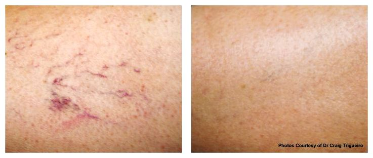 Raleigh new york rosacea and vein treatment invasive, and