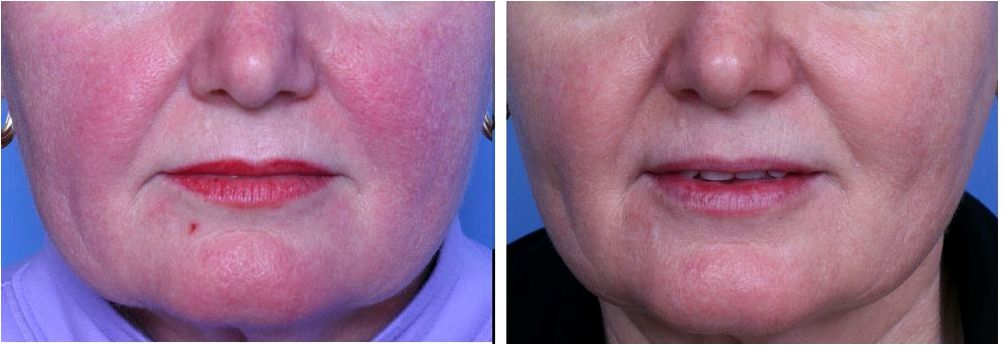 Raleigh new york rosacea and vein treatment Dynamic Cooling Device which