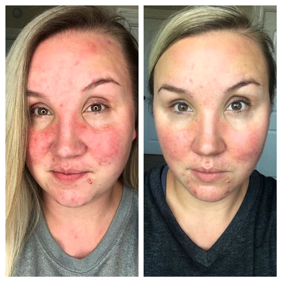 Rosacea treatment results bloodstream vessels from the face