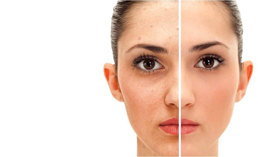 Skincare services deep chemical peel infusion of antioxidants and hyaluronic