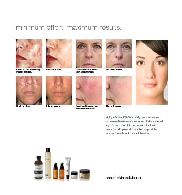 Skincare services deep chemical peel peel that increases your skin