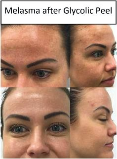Skins glycolic acidity mire peel tca peel and much more! the treatment area, this really