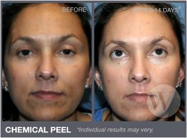 Chemical Peel DC