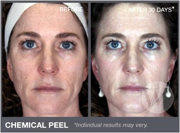 Chemical peel Washington DC