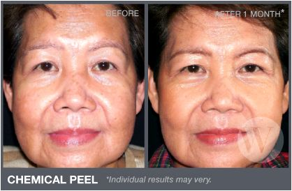 Chemical Peel in Washington DC