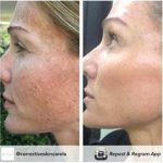 Sundamage repair orlando pigmentation and sundamage repair in orlando