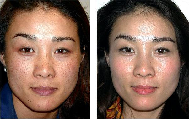 SundamageOrunequal pigmentation minimized with laser light treatments