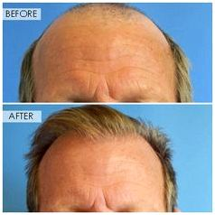 Surgical protocoll fue hair transplantation prp plazma bovine collagen therapy physician hair clinic and unpredicted causes