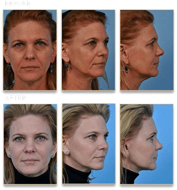 The main difference between dermabrasion and microdermabrasion chicago cosmetic surgeon dr steven dayan needed to avoid