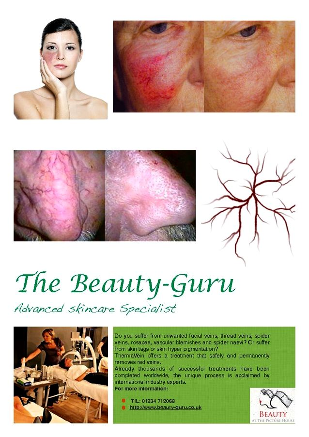 Thermavein red vein removal inside the