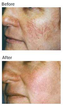 Thread vein treatment near the top of skin