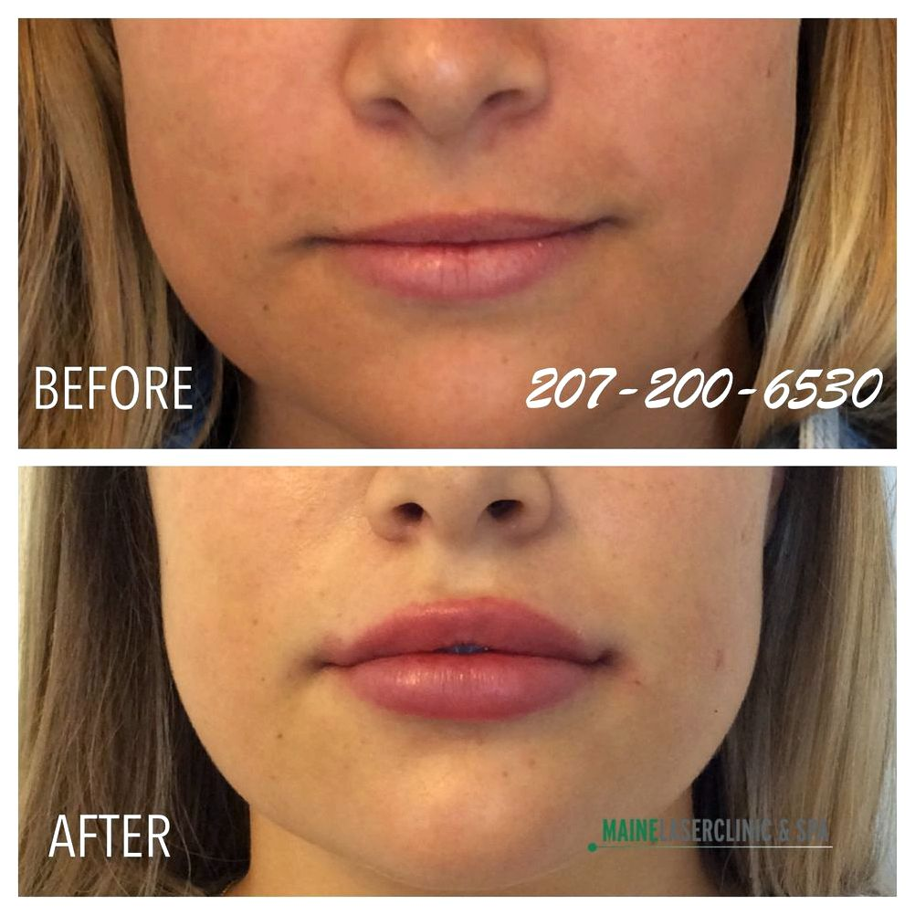 Toprated dermal fillers Garberich will carefully place lip