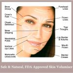 Toprated dermal fillers