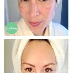 Treating static wrinkles with dermal fillers norwood ma foxboro ma franklin ma