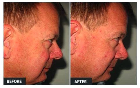 Vein treatments veinwave impact the