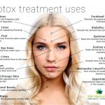 What's botox treatment negative effects of botox treatment injections