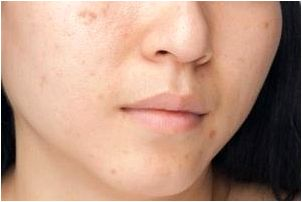 What' title='What' /></p> <p>Yes, it's easy to help treat acne problems scars.</p> <p>Treatment methods are mostly is determined by the dimensions & form of acne scarring.</p> <p>If it is minor then it's simple to treat them but when its major then it might take some occasions to heal them.</p> <p>There are many products to heal them however these 5 best goods are really effective to deal with them :-</p> <p><b><i>5 Best products for scars & brown spots that really works</i></b></p> <p>For acne & pimples , you can test product which contains salicylic acidity because salicylic acidity is better to deal with acne / pimples and many skin ailment .</p> <p>See here :-<b><i>Salicylic Acidity:- Cure For Acne And Dry skin</i></b></p> <p><b><i>Some suggestions to deal with acne and scars :-</i></b></p> <p><b>1. Tea-tree Oil and Essential Olive Oil</b></p> <p>Tea-tree oil has antiseptic, anti-microbial, cosmetic, and anti-yeast qualities. Essential olive oil is really a natural moisturizer which fades scars.</p> <ul> <li>Pour 5 – 6 drops of tea-tree oil on the wet clean cloth.</li> <li>Make use of a back scratcher or perhaps your hands to massage the affected region using the clean cloth.</li> <li>Once it's absorbed through the skin, pour a tablespoon of essential olive oil on the second wet clean cloth.</li> <li>Make use of a back scratcher or perhaps your hands to massage the affected region using the clean cloth.</li> <li>Leave for 5-10 minutes then Make use of a dry clean cloth to wipe the surplus oil onto the skin.</li> <li>Repeat 3 occasions daily for the best results.</li> </ul> <p><b>2. Fresh Lemon Juice</b></p> <p>Lemon contains citric acidity which lightens scars and ascorbic acid which will help your skin regenerate new cells.</p> <ul> <li>Wash the back with tepid to warm water and pat dry having a towel.</li> <li>Use a cotton pad to use freshly squeezed lemon juice towards the affected region.</li> <li>Leave for ten minutes.</li> <li>Rinse with water.</li> <li>Repeat regularly to deal with acne scarring.</li> <li>Note: Apply sun block towards the treated area in situation of <a href='~id-263