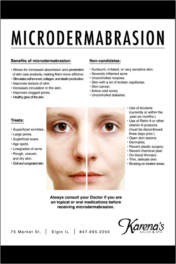 Will microdermabrasion or skin needling produce better skin? of complications for example hypopigmentation