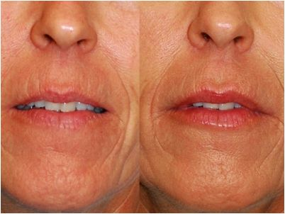 Wrinkle reduction (volume correction) olmsted clinic rochester mn administration-approved and