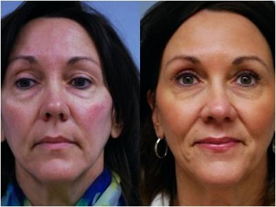 Wrinkle reduction (volume correction) olmsted clinic rochester mn Studies prove that Radiesse
