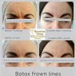 Wrinkle relaxing botox treatment injections in hampshire