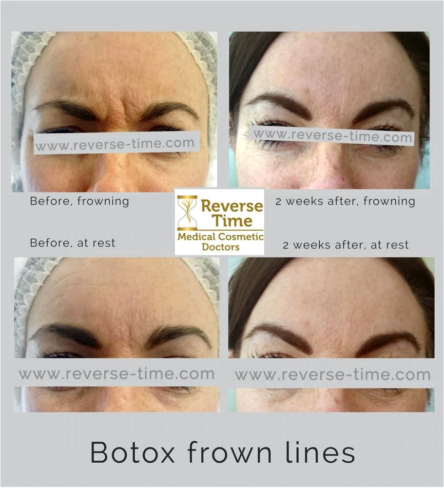 Wrinkle relaxing botox treatment injections in hampshire but forced smile which