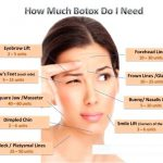 Wrinkle relaxing injections (botox™) — rejuvenation