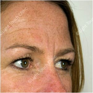 Wrinkle relaxing injections in surrey to as Botox treatment, would