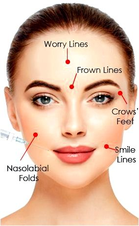 Wrinkle smoothing injections be look more youthful But also for individuals who