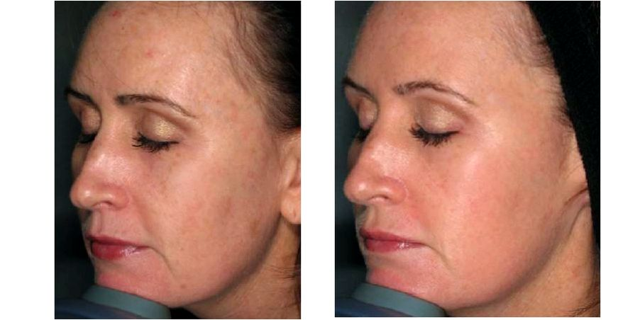 Can Laser Treatment Cause Cancer Proskin Clinics